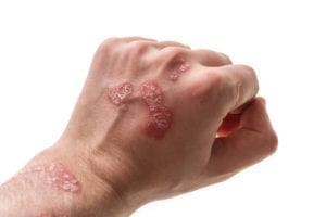 psoriasis op hand